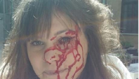 Anna Jonsson fick ett spräckt ögonbryn under attacken men klarade sig i övrigt bra. Foto: Realisten.