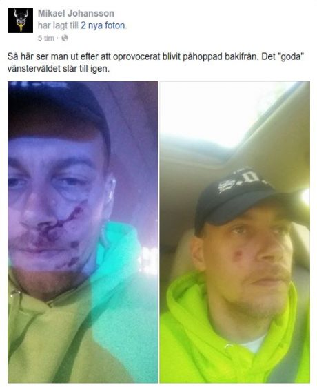 SOO-talesmannen Mikael Johansson efter överfallet. FOTO: Facebook