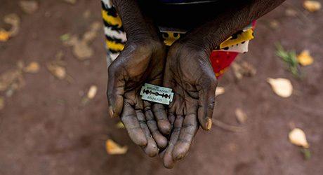 Kvinnlig könsstympning är ett mångkulturellt problem i England.